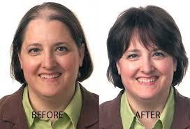 Hair surgery