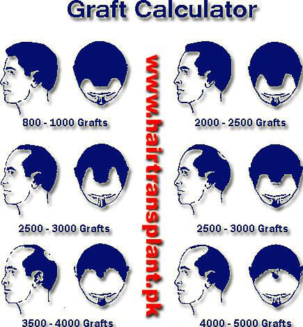 hair-transplant-pakistan-graft-calculater
