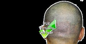 Fue-hair-transplant-in-Pakistan