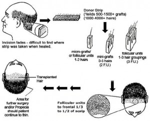 hair-transplantation-diagram