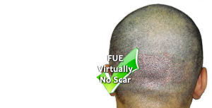 Fue-hair-transplant-in-Pakistan